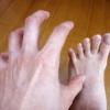 水虫と足を洗う習慣