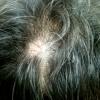 脱毛の原因、整髪料