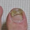 トリコフィトン・トンズランス菌(新型水虫)